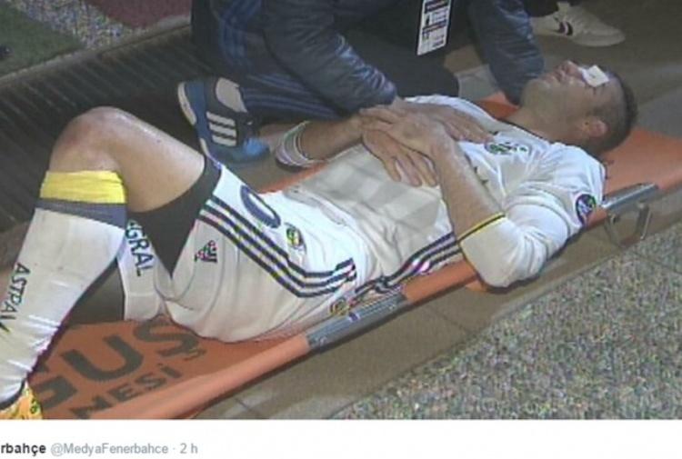 Fenerbahce, infortunio shock per Van Persie: rischia di perdere la vista