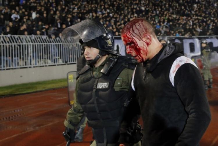 Belgrado, il derby finisce nel sangue