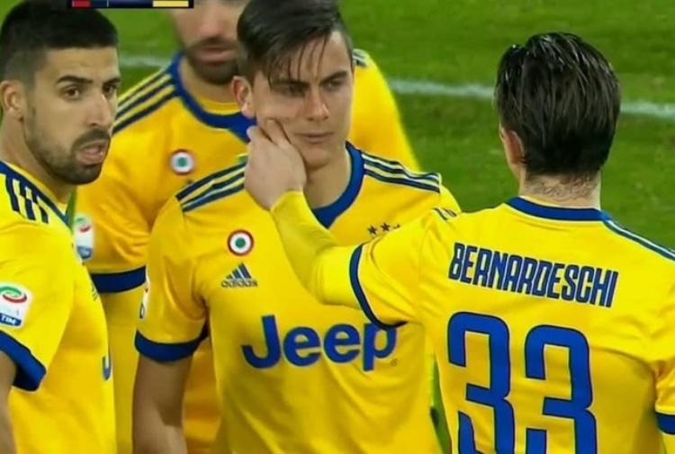 Juventus, infortunio Dybala: lesione distrattiva ai flessori della coscia destra